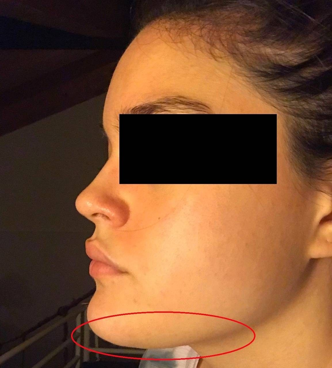 Defined jawline more 6 Tips
