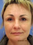 Brow lift - Photo before - Asklepion – Laser and Aesthetic medicine