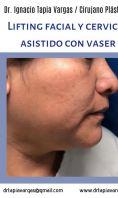 Clínica Vaser Lipo Center - Photo before - Clínica Vaser Lipo Center