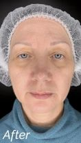 Fotorejuvenation  - Photo before - Aether Clinic Prague