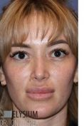 Rhinoplasty (Nose Job) - Photo before - Dr. Ion Zegrea PhD