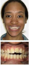 Other cosmetic and aesthetic dentistry - Photo before