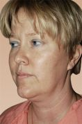 Facelift - Photo before - Clinique of Plastic Surgery