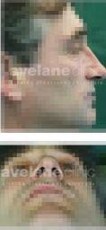 Avelane Clinic - Photo before - Avelane Clinic