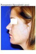 Chin Surgery - Photo before - Dr. Ana Luminita Banacu