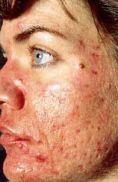 Laser acne treatment - Photo before - Klinika Laser Esthetic