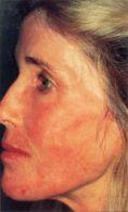 Mesotherapy (face, neck revitalization) - Photo before - Klinika Laser Esthetic