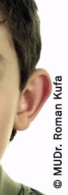 MUDr. Roman Kufa - Perfect Clinic - Photo before - MUDr. Roman Kufa - Perfect Clinic