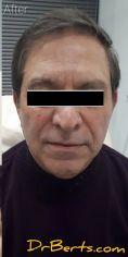 Dr Alberto Leguina-Ruzzi MD PhD - Photo before - Dr Alberto Leguina-Ruzzi MD PhD