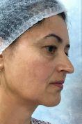 Thread lift - Photo before - Dr. Ana Luminita Banacu