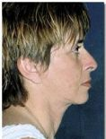 Facelift - Photo before - Dr. Jose Luis Valero S.