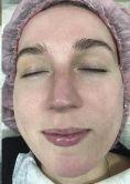 Intense pulse light Treatment (IPL) - Photo before - Aether Clinic Prague