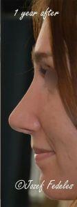 Rhinoplasty (Nose Job) - Photo before - MUDr. Jozef Fedeleš PhD.