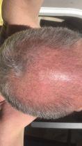 Hair Transplant - Photo before - Dr Jeremy Joiris