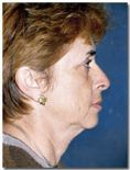 Dr. Jose Luis Valero S. - Photo before - Dr. Jose Luis Valero S.