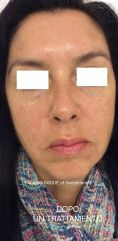 Ultherapy - Photo before