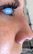 Rhinoplasty (Nose Job) - Photo before