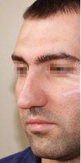 Rhinoplasty (Nose Job) - Photo before - Mediestetik, skupina klinik