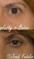 Eyelid surgery (Blepharoplasty) - Photo before - MUDr. Jozef Fedeleš PhD.