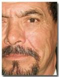 Mole removal - Photo before - Dr. Jose Luis Valero S.