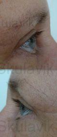 Eyelid surgery (Blepharoplasty) - Photo before - Dr. med. Jozefina Skulavik
