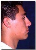 Rhinoplasty (Nose Job) - Photo before - Dr. Jose Luis Valero S.