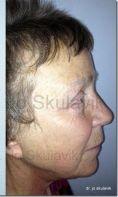 Facelift - Photo before - Dr. med. Jozefina Skulavik