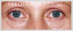 Cleopatra Clinic, Klinika Plastické Chirurgie s.r.o. - Photo before - Cleopatra Clinic, Klinika Plastické Chirurgie s.r.o.