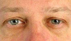 Eye Bags Treatment - Photo before - dr. n. med. Kamil Pietrasik