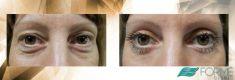 Eye Bags Treatment - Photo before - MUDr. Petr Jan Vašek