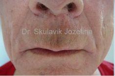 Lip Lift - Photo before - Dr. med. Jozefina Skulavik
