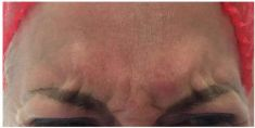 Hyaluronic acid-based wrinkle fillers - Photo before - Aether Clinic Prague