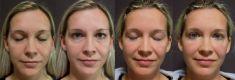 Eyelid surgery (Blepharoplasty) - Photo before - FORMÉ Clinic