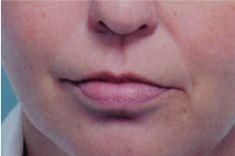 Lip augmentation - cheiloplasty - Photo before - Wafik A Hanna