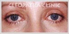 Eyelid surgery (Blepharoplasty) - Photo before - MUDr. Taisir Zakout