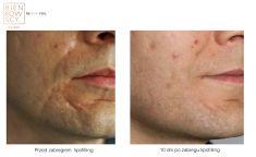 Fat (lipofiling) - Photo before - Dr n. med. Marcin Bieńkowski