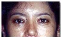 Eyelid surgery (Blepharoplasty) - Photo before - Dr. Jose Luis Valero S.