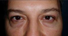 Dr. Sorin Parasca - Photo before - Dr. Sorin Parasca