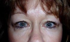 Eyelid surgery (Blepharoplasty) - Photo before - Klinika Laser Esthetic