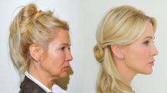Thread lift - Photo before - YES VISAGE Aesthetic medicine and plastic surgery clinic