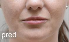 Lip augmentation - cheiloplasty - Photo before - MUDr. Dominika Kevická