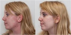 Laser acne treatment - Photo before