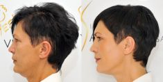 Non Surgical Lift - Photo before - YES VISAGE Aesthetic medicine and plastic surgery clinic