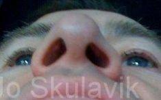 Rhinoplasty (Nose Job) - Photo before - Dr. med. Jozefina Skulavik