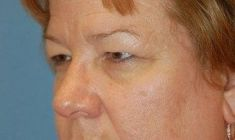 Brow lift - Photo before - MUDr. Martin Molitor PhD.
