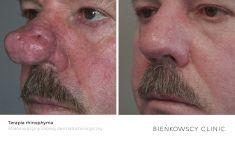 Mole removal - Photo before - Dr n. med. Marcin Bieńkowski