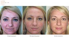 Laser acne treatment - Photo before - Bieńkowscy Clinic®