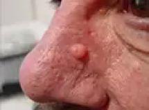 Mole removal - Photo before - Eveclinic Bratislava