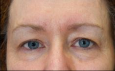 Microneedling (Dermaroller) - Photo before