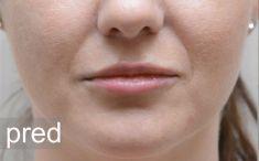 Lip augmentation - cheiloplasty - Photo before
